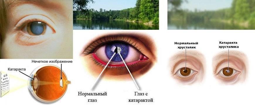 10 распространенных причин пелены перед глазами и способы лечения