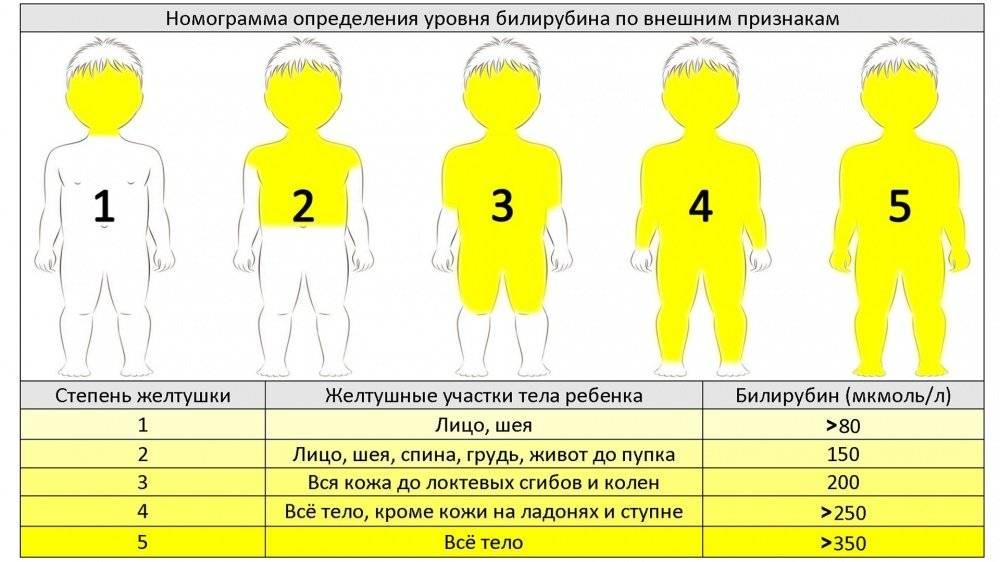 Как лечить желтуху в домашних условиях?