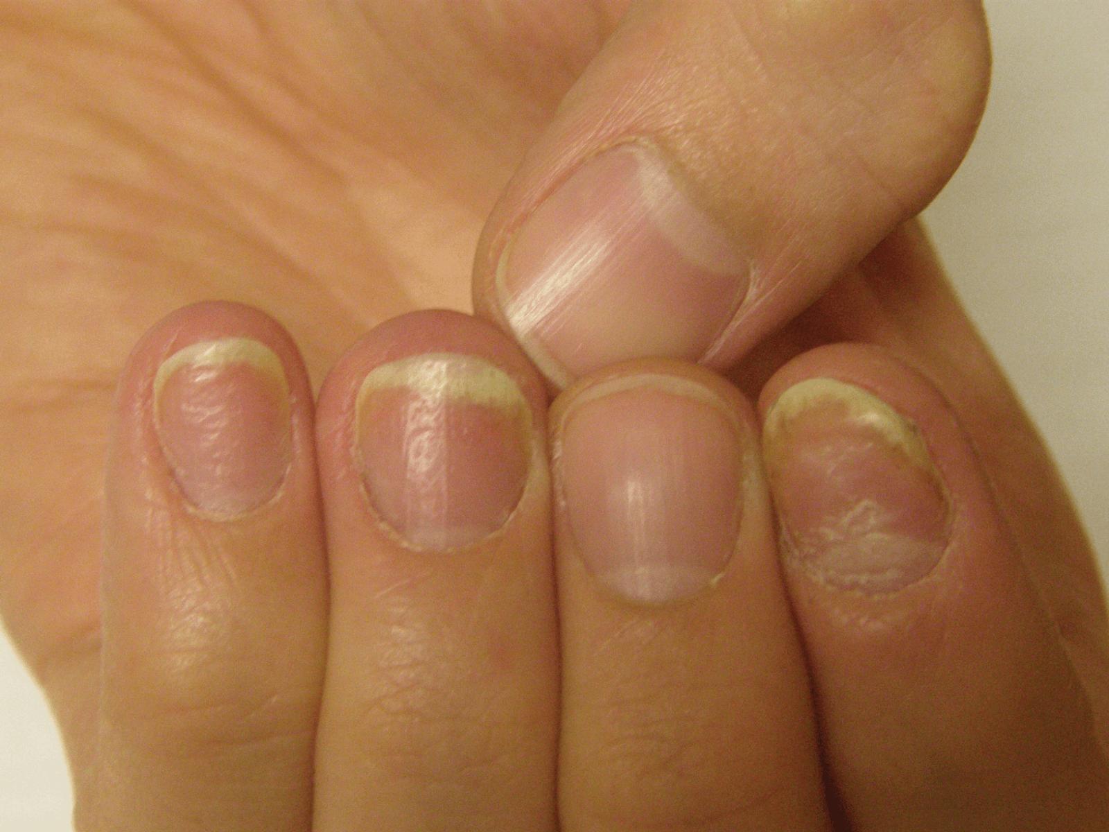 ногтевой псориаз