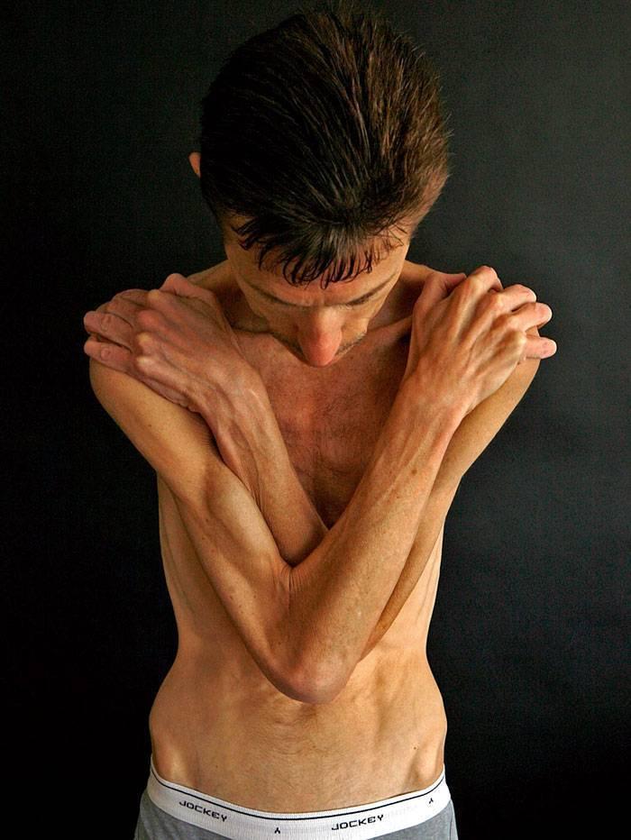 как избавиться от анорексии самостоятельно