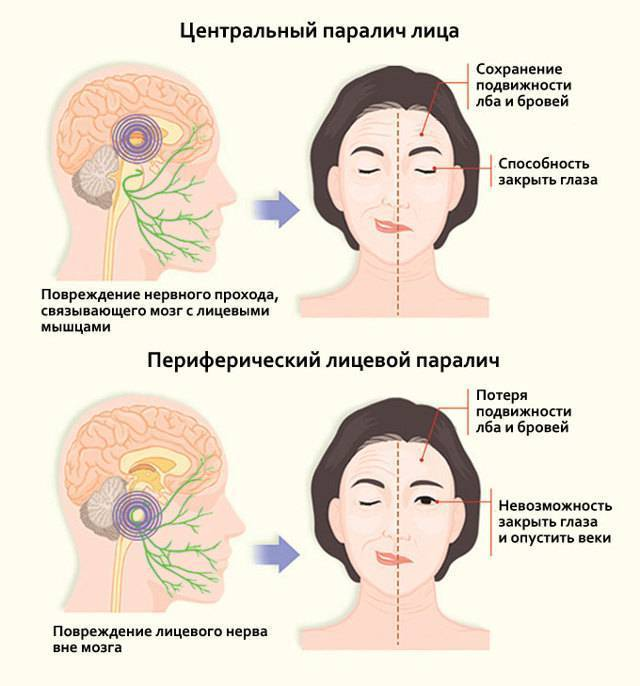 Гимнастика для лица при неврите лицевого нерва * видео упражнения при застужение и параличе