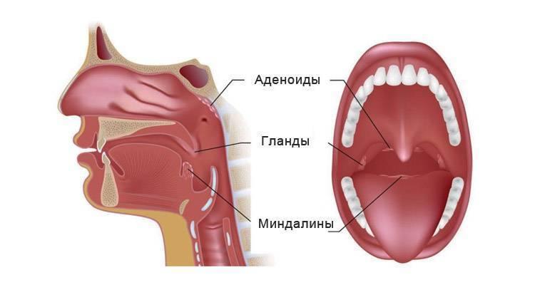 Аденоиды: причины, признаки, как лечить, показания к операции