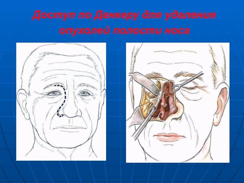 опухоль в носу что это может быть