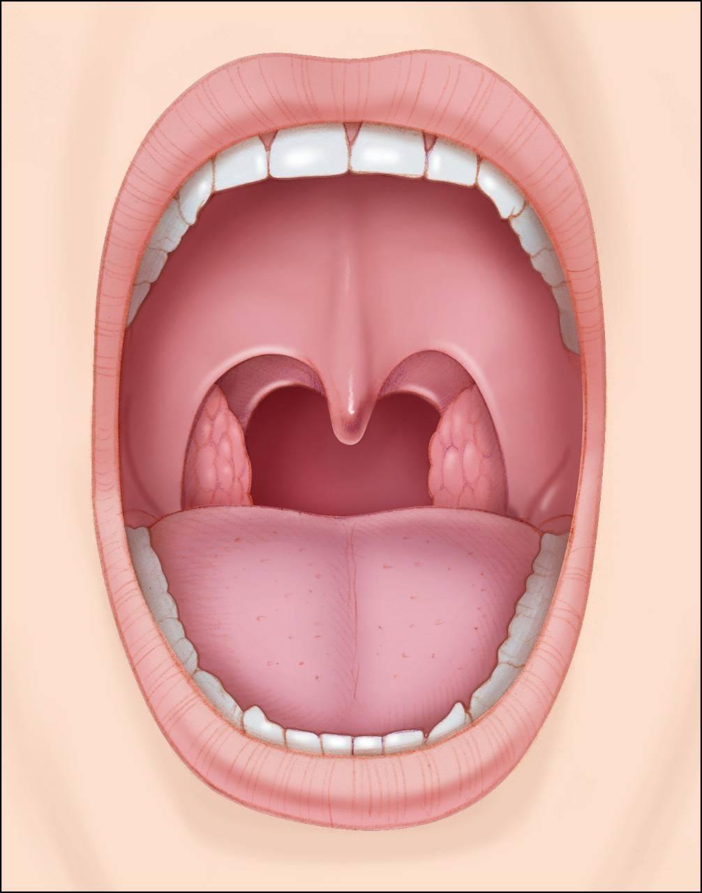 Воспаленное горло у взрослого лечение