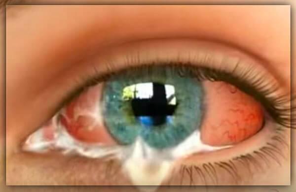 Вопрос: как лечить глазной хламидиоз?