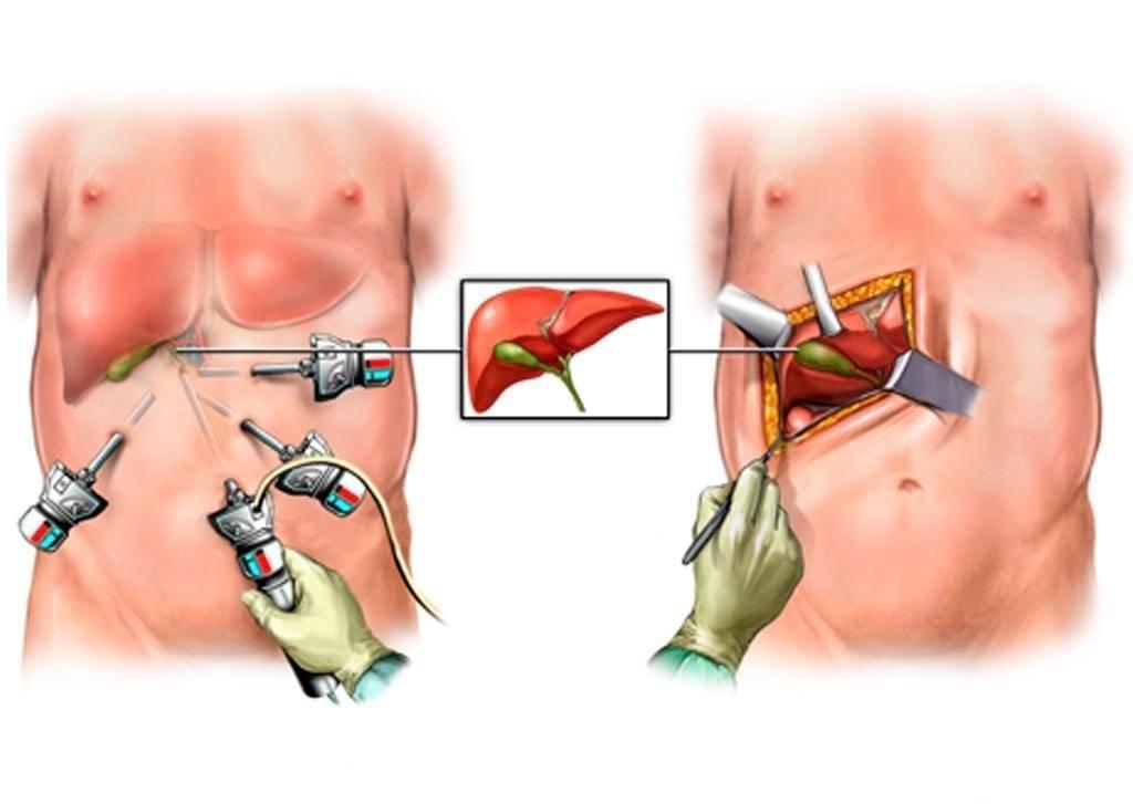 операции на желчном пузыре удаление камней