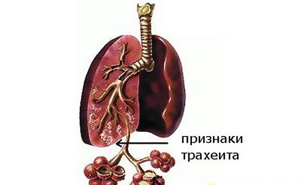 лечение острого трахеита с сухим кашлем