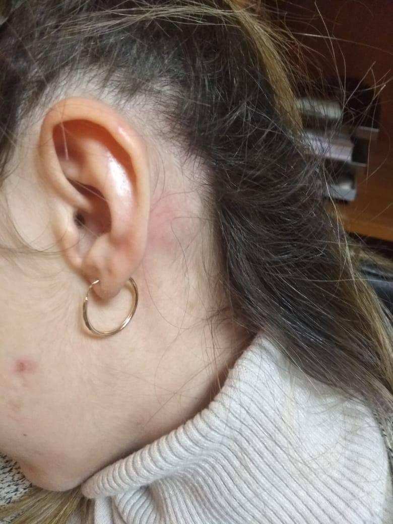 Болит за правым ухом внизу у мочки