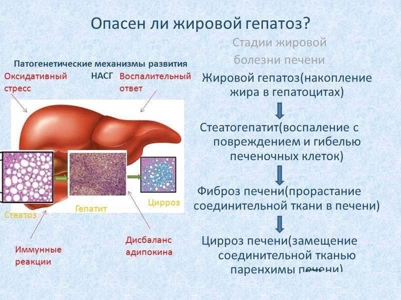 Жировой гепатоз – симптомы, лечение печени, диета, признаки