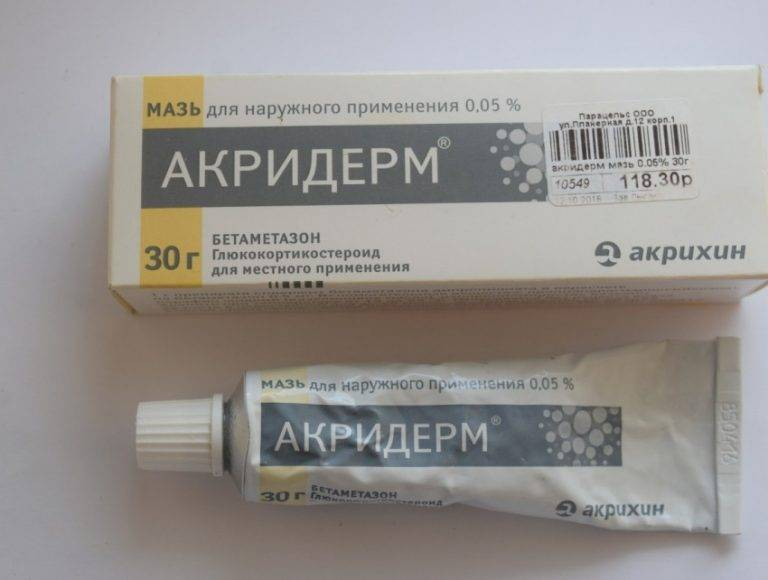 Мази от опрелостей и зуда в паху у взрослых. как избавиться, средства из аптеки