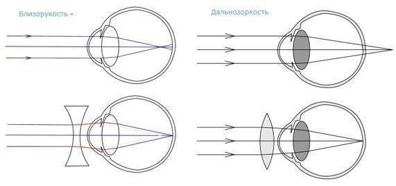 Очки для дальнозоркости приносят дискомфорт? выход есть — контактные линзы
