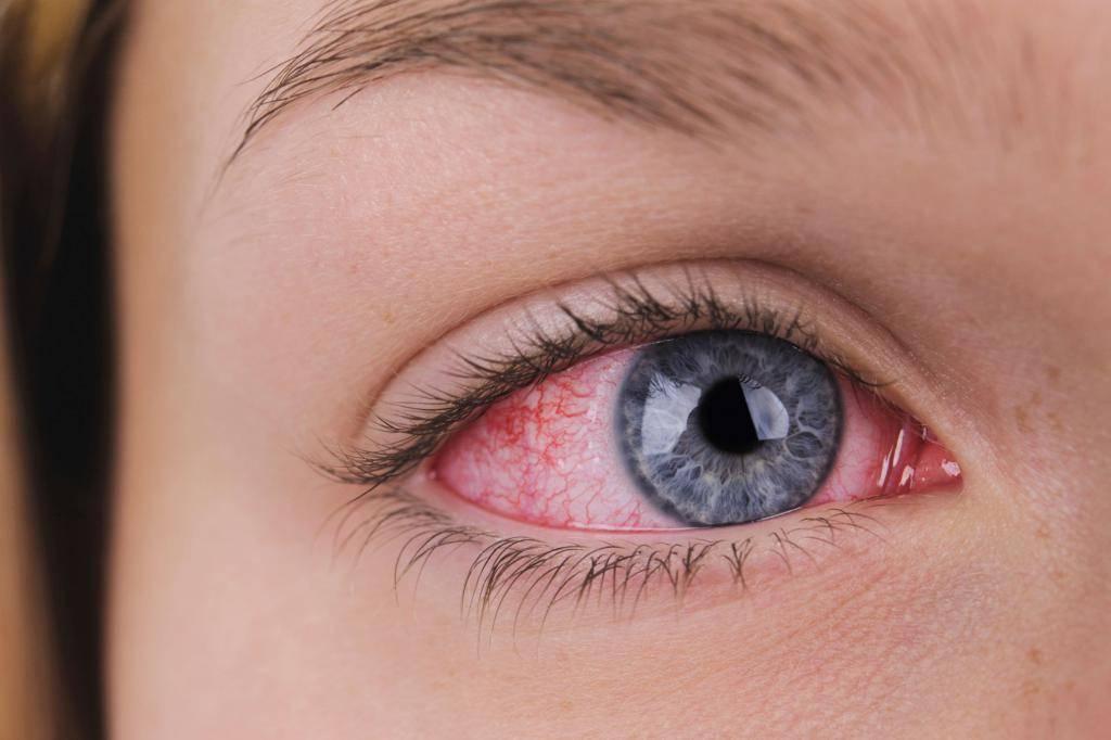 После бани болят глаза почему