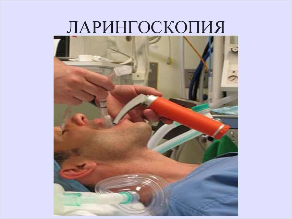 Мрт гортани