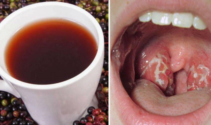 Лечение ангины свеклой: поможет ли овощ от боли в горле, как принимать? рецепты с уксусом и другие