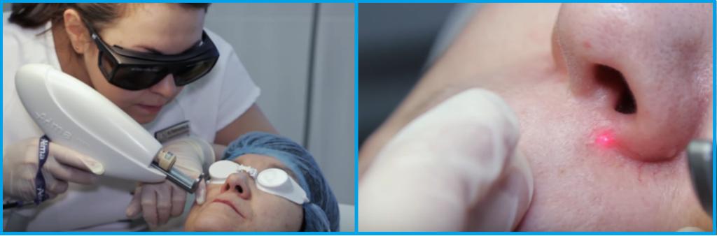 Прижигание сосудов в носу: показания, все методы, процедура и реабилитация
