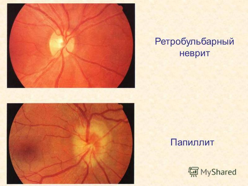 ретробульбарный неврит зрительного нерва