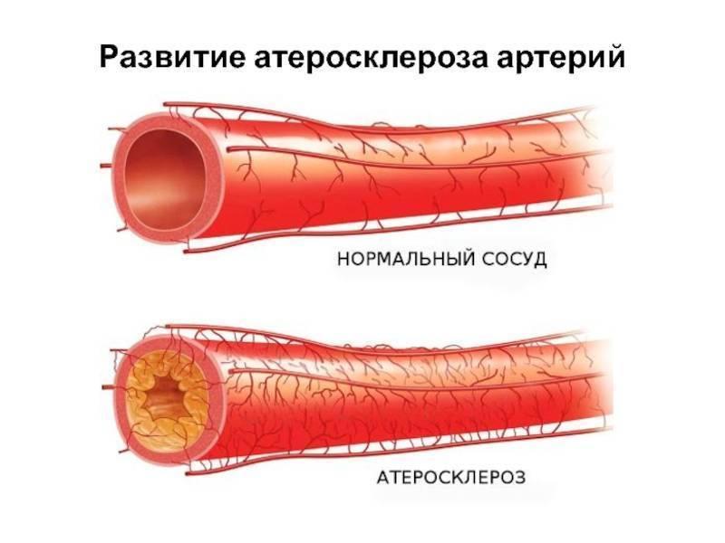 атеросклероз внечерепных отделов брахиоцефальных артерий