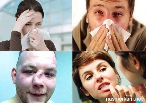 Киста в носовой пазухе: симптомы, лечение, последствия