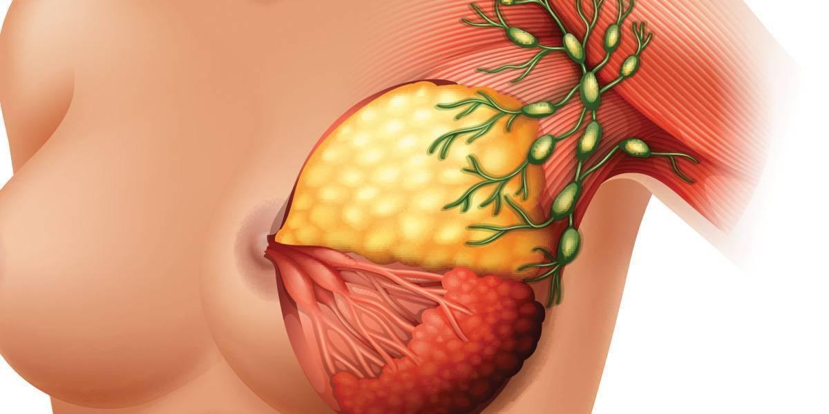 Увеличение лимфоузлов при фиброзно-кистозной мастопатии - вопрос маммологу - 03 онлайн