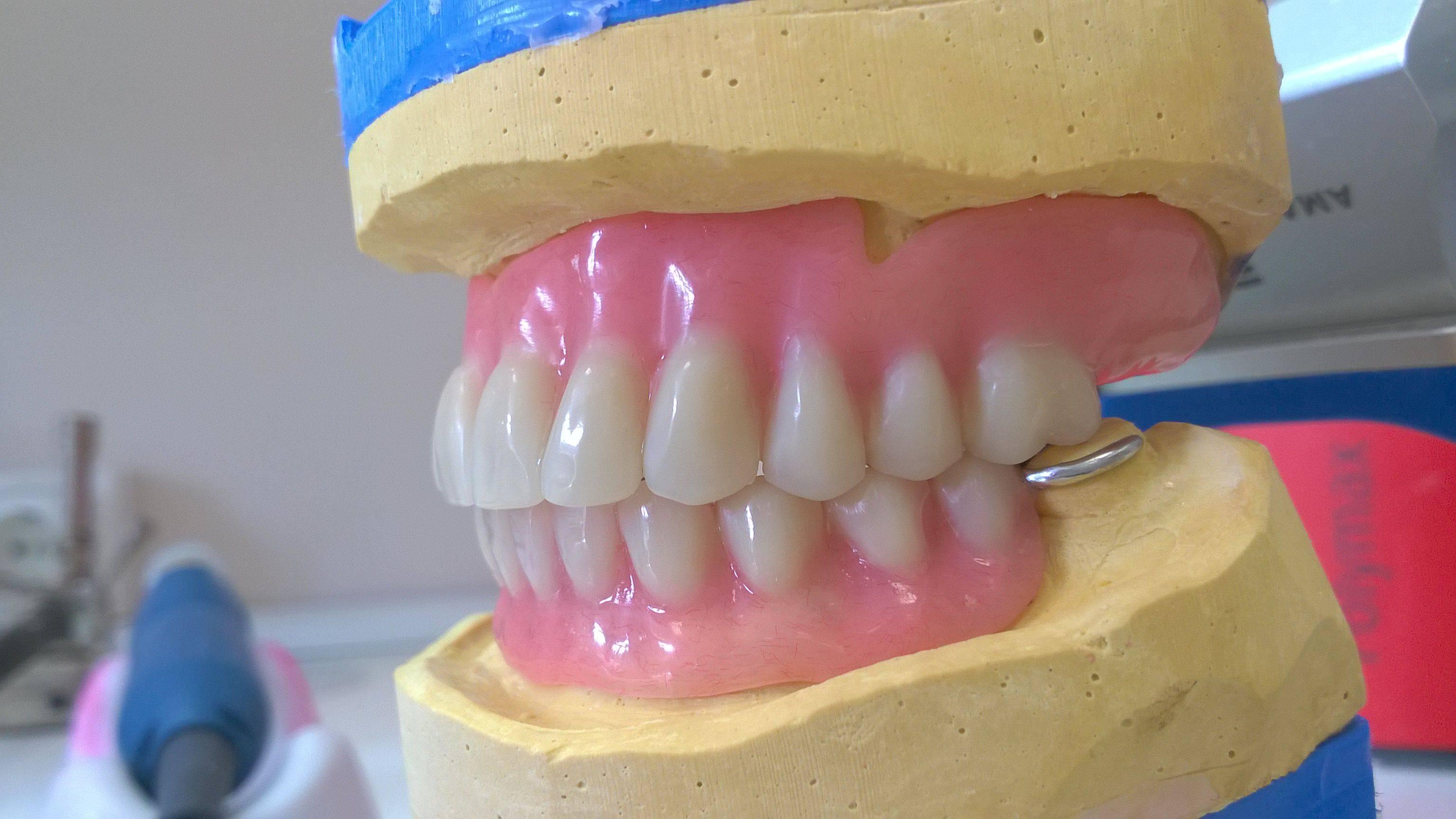 Какой материал выбрать для протезирования зубов