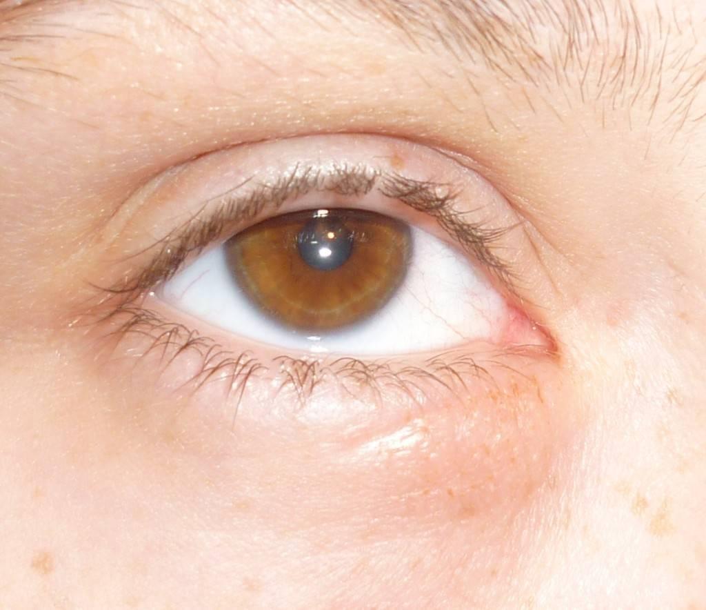 Почему чешется в уголках глаз?