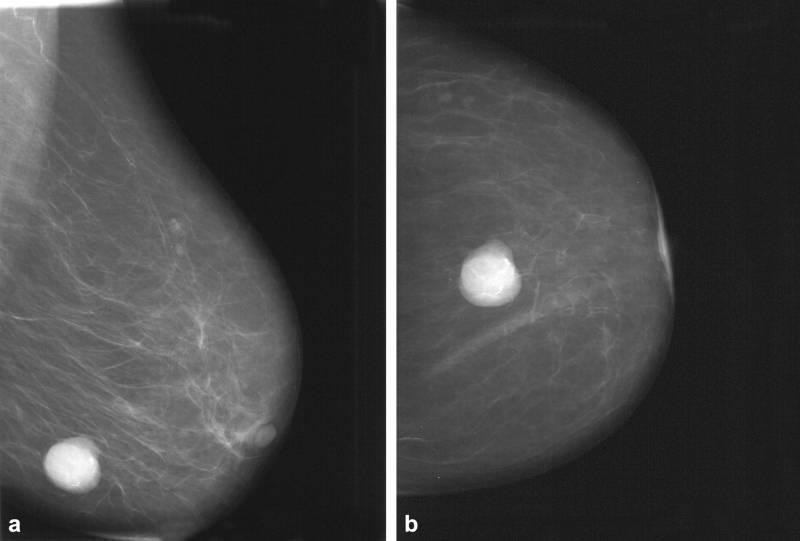 Киста в груди: лечение, симптомы, причины, удаление