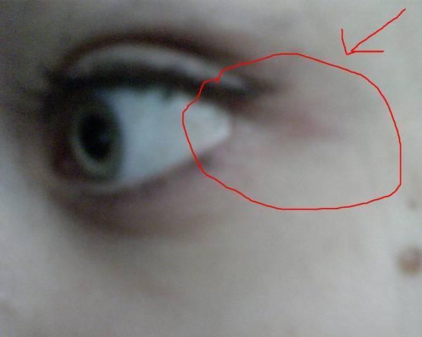 Покраснение в углу глаза болит