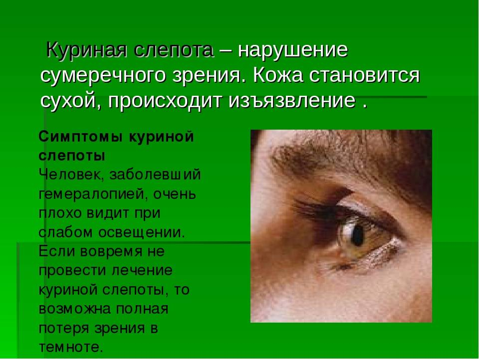 Сумеречное зрение (гемералопия) - причины расстройства зрения