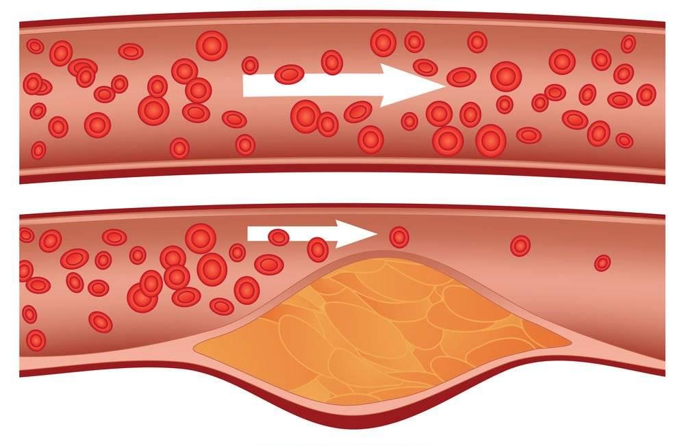 Холестерин — википедия с видео // wiki 2