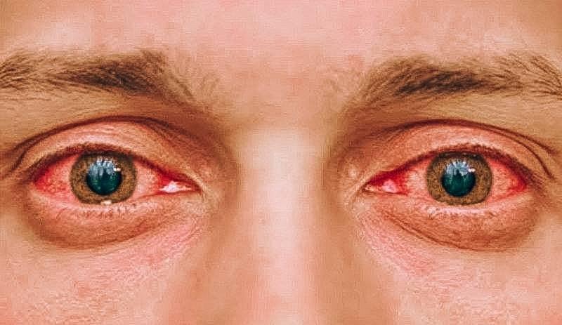 Вопрос специалисту: почему после бани красные глаза