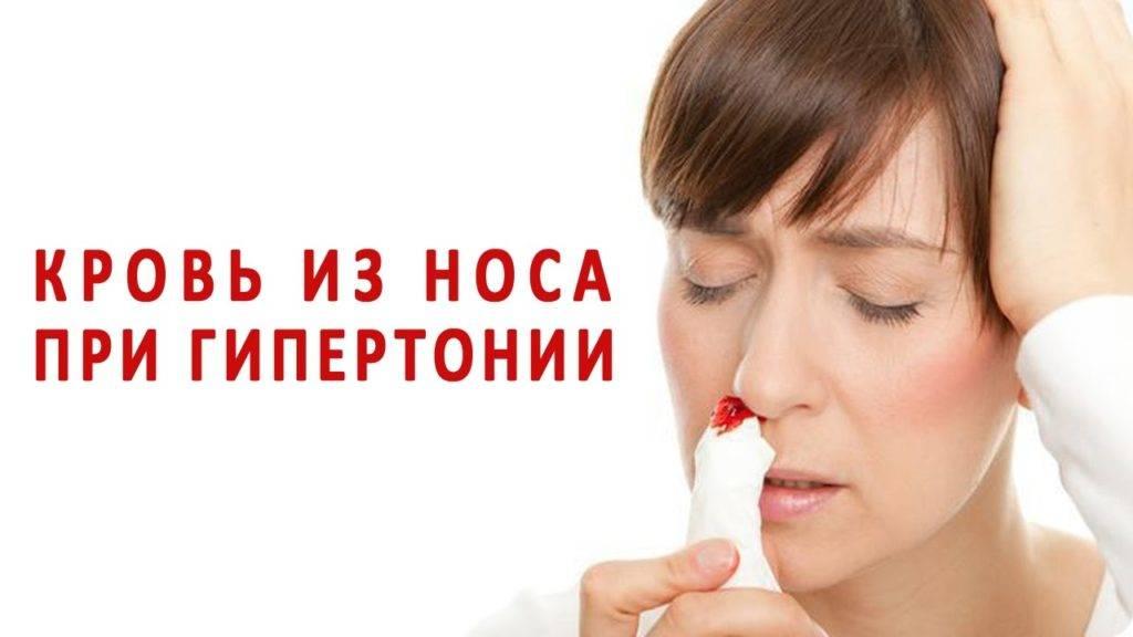 что делать если постоянно идет кровь из носа