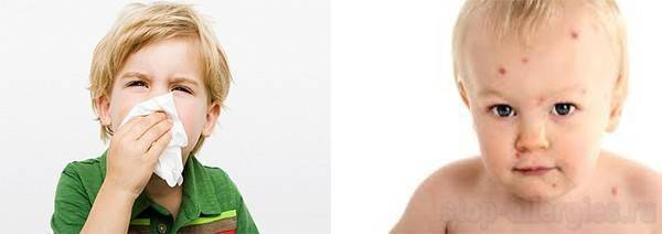 Лечение и диагностика атопического дерматита (2016) - базисная терапия атопического дерматита у детей - запись пользователя komareks (id1821139) в дневнике - babyblog.ru
