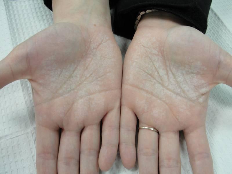 Псориаз на руках: начальные стадии, симптомы, поиск причины и варианты лечения современными средствами (85 фото)
