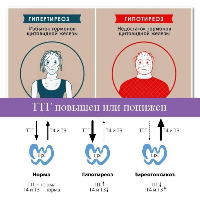 щитовидная железа высокий ттг