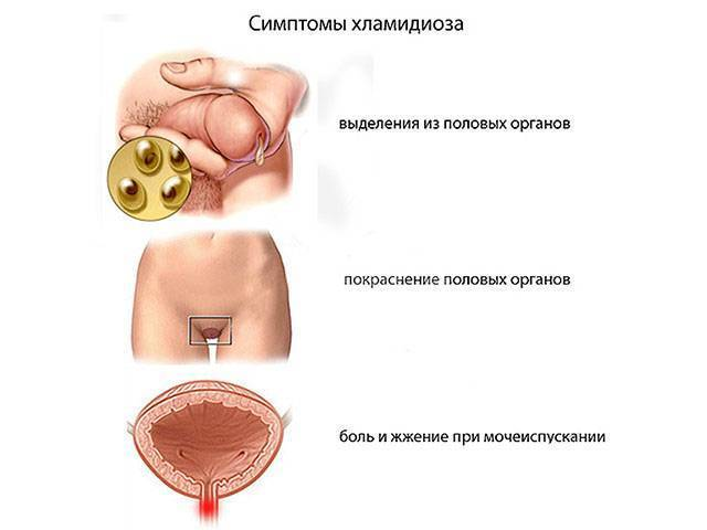 Последствия хламидиоза у женщин
