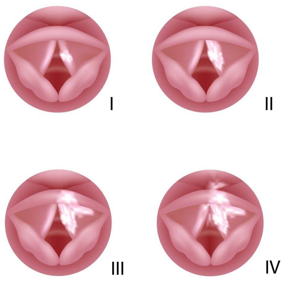 Как развивается рак горла (фото начальная стадия)
