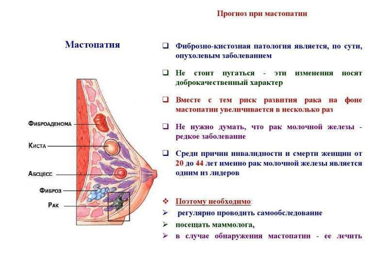 фиброзная мастопатия лечение