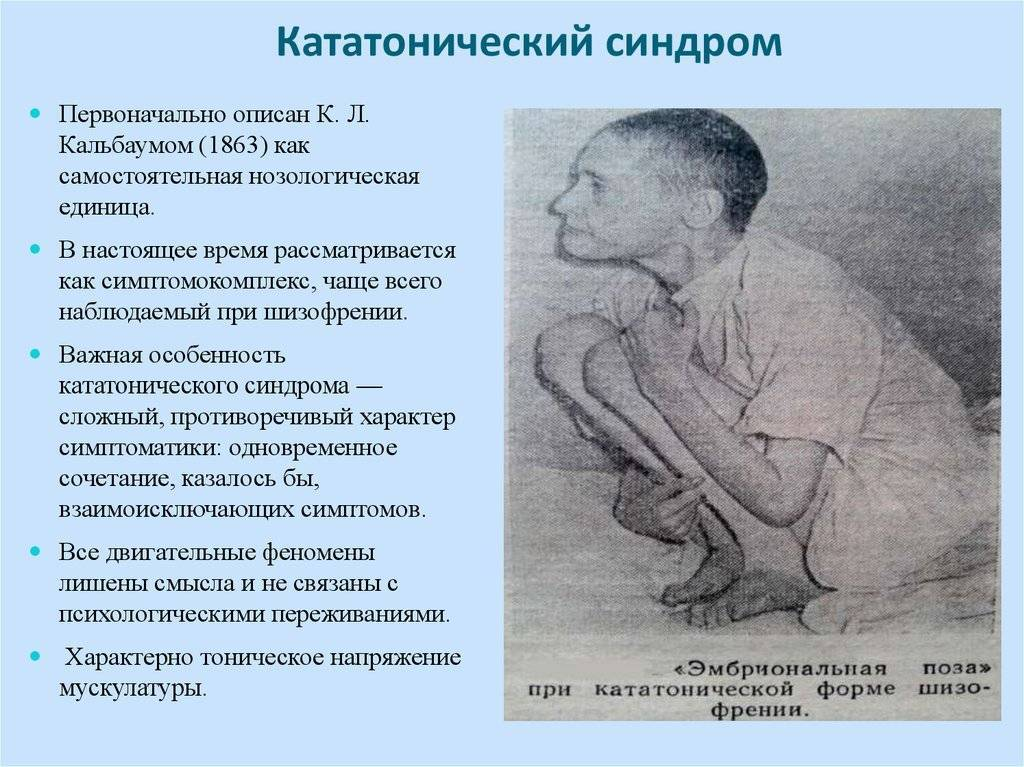 Кататонический синдром — википедия. что такое кататонический синдром