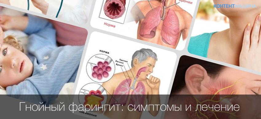 Симптомы гранулезного фарингита с фото горла, причины развития и способы лечения