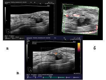 Внутрипротоковая папиллома - опухоли молочной железы