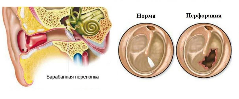 Болит ухо и лопаются пузырьки