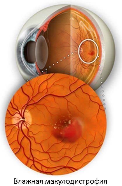 вмд глаза влажная форма лечение