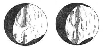 Удаление синехий (спайки) в носу