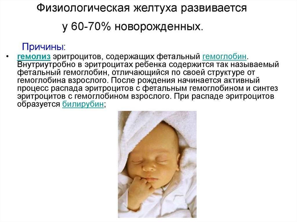 Особенности сестринской деятельности при пограничных состояниях новорожденных: желтуха новорожденных