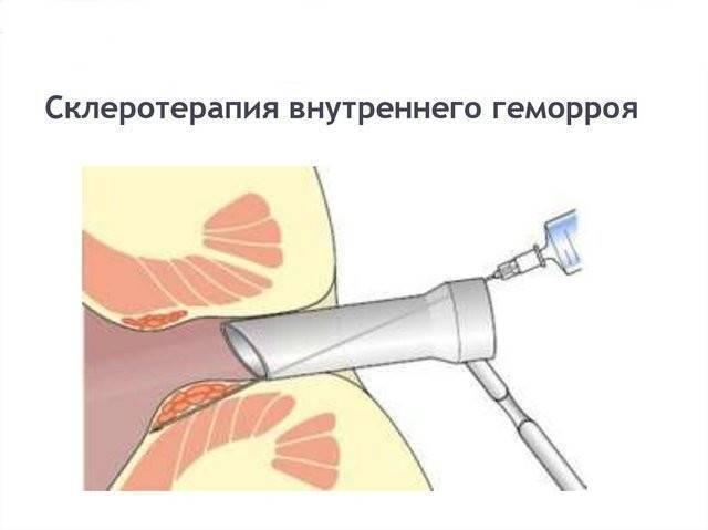 Склеротерапия геморроидальных узлов и последствия процедуры