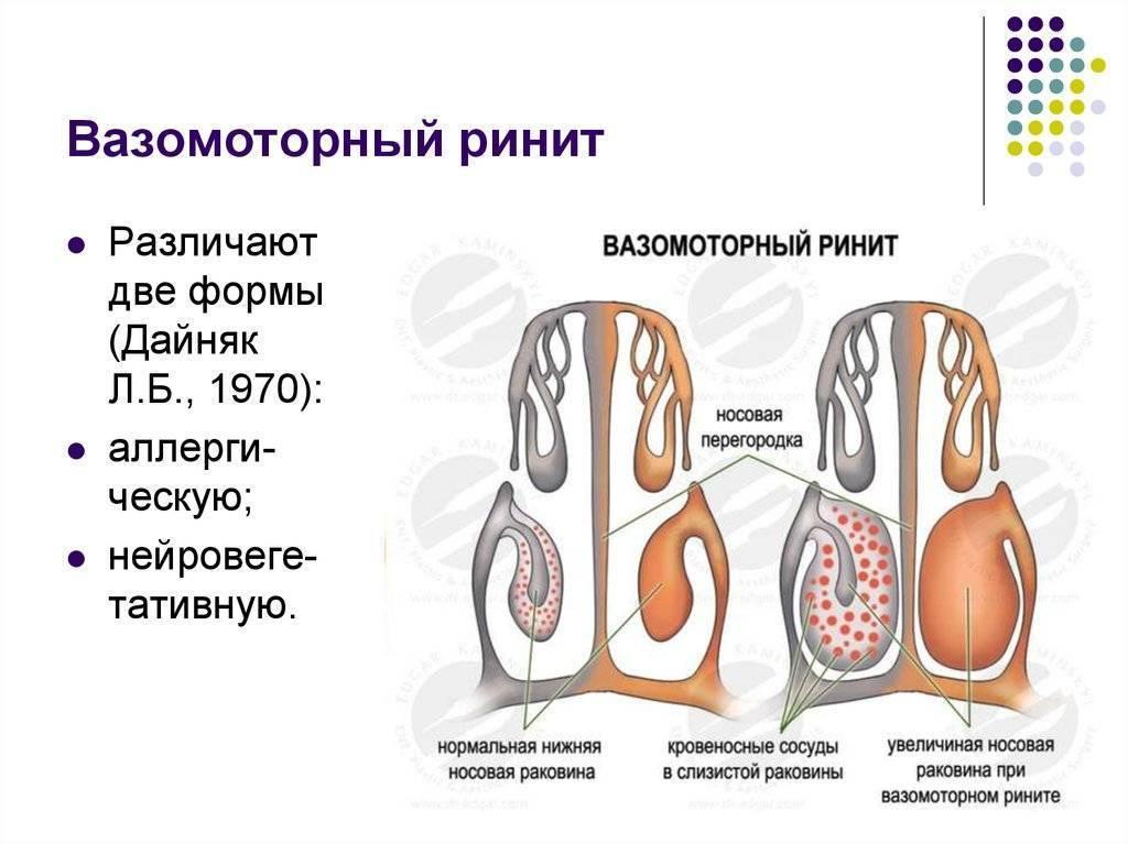Что делать при вазомоторном рините? лечение медикаментами и народными средствами
