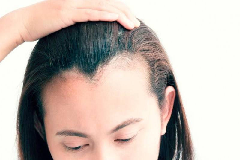 псориаз головы чем лечить