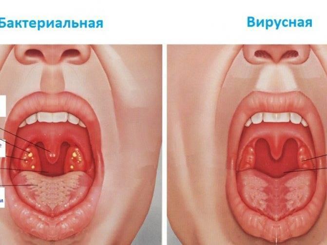 Клиническое течение вирусной ангины у взрослых и детей: лечение