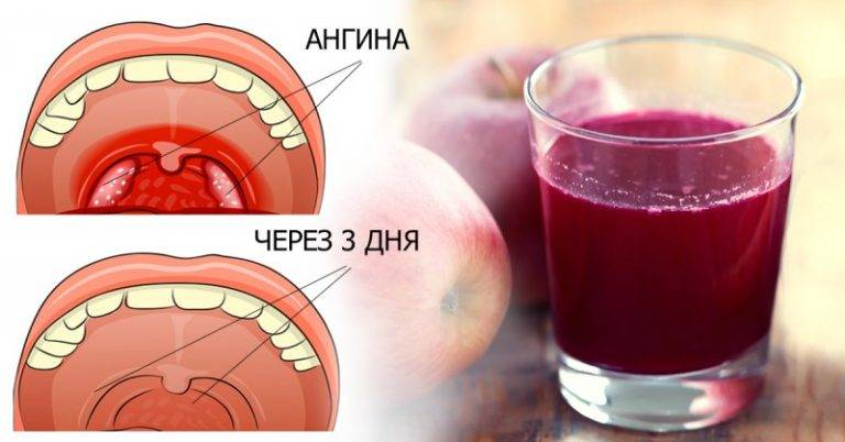 можно ли лечить ангину без антибиотиков