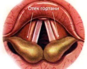 Ощущение отека в горле причины. отек гортани – причины и осложнения